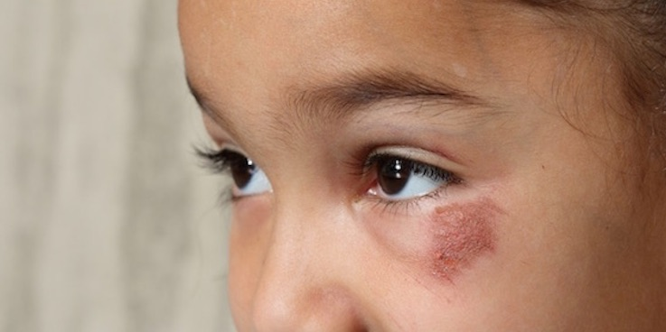 Thumbnail image of girl with black eye
